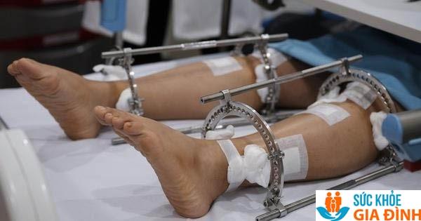 Phẫu thuật kéo dài chân vô cùng đau đớn và tiềm ẩn nhiều rủi ro
