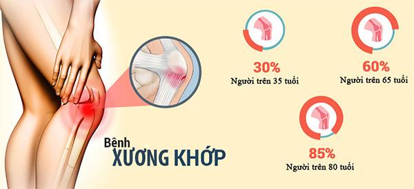 Tỉ lệ người mắc bệnh xương khớp ở Việt Nam ngày càng cao